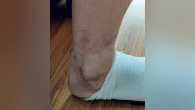 전기봉으로 당한 고문에 자오 씨의 발에는 수많은 상흔이 남아 있다